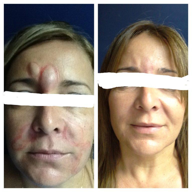 Eliminacion Biopolimeros Face Picture